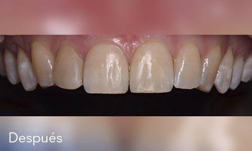 Estética dental (Diseño de sonrisas)