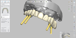 Implantología Digital
