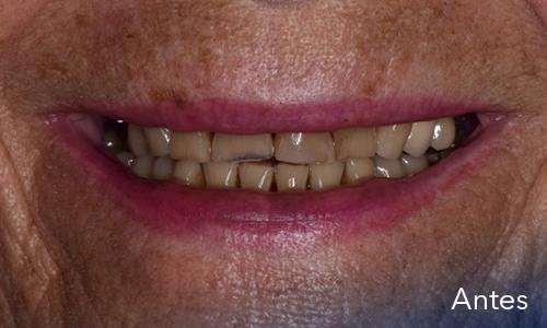 Caso 9: Rehabilitación oral