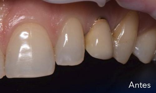 Caso 10: Estética en implantología