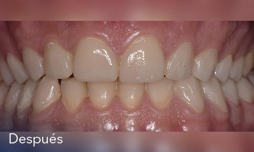 Caso 7: Rehabilitación oral
